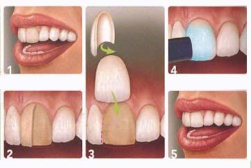 Veneers Abbey Dental Practice