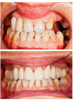 stock-photo-20919555-before-after-smile-design