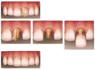 abbey dental crowns
